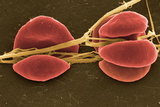 Blood Clot, SEM Posters by Steve Gschmeissner