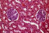 Kidney Glomeruli, Light Micrograph Posters by Steve Gschmeissner