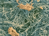 Dental Plaque, SEM Posters by Steve Gschmeissner