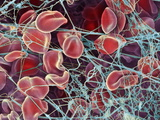 Blood Clot, SEM Prints by Steve Gschmeissner