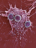 T Lymphocytes And Cancer Cell, SEM Posters by Steve Gschmeissner