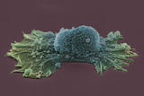 Ovarian Cancer Cell, SEM Prints by Steve Gschmeissner