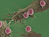 T Lymphocytes And Cancer Cells, SEM Photographic Print by Steve Gschmeissner