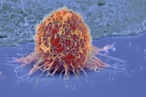 Cervical Cancer Cell, SEM Posters by Steve Gschmeissner