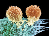 T Lymphocytes And Cancer Cell, SEM Photographic Print by Steve Gschmeissner