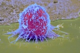 Cervical Cancer Cell, SEM Print by Steve Gschmeissner