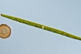 Green Alga, Light Micrograph Photo by Gerd Guenther