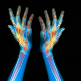 Hands, X-ray Photographic Print by  Gustoimages