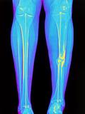 Coloured X-ray of Fractured Shin Bone (tibia) Photographic Print by Mehau Kulyk