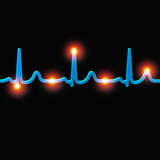 ECG of a Normal Heart Rate Photographic Print by Mehau Kulyk