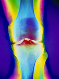 Coloured X-ray of a Human Knee Joint Photographic Print by Mehau Kulyk
