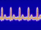 Computer Artwork of Healthy ECG Trace of the Heart Photo by Mehau Kulyk
