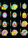 Coloured MRI Scans of Human Brain (multiple Views) Photographic Print by Mehau Kulyk