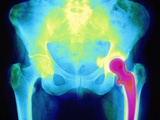 Coloured X-ray of An Artificial Hip Joint Photographic Print by Mehau Kulyk