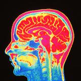 Brain, MRI Scan Photographic Print by Mehau Kulyk