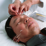 Acupuncture Photographic Print by Tek Image
