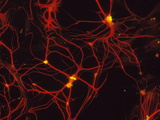 Immunofluorescent LM of Mammalian Brain Astrocytes Poster by Nancy Kedersha