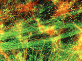 Immunofluorescent LM of Neurons & Astrocytes Posters by Nancy Kedersha