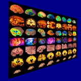 Human Brain, Coloured Scans Photographic Print by Arthur Toga