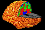 Human Brain, 3-D MRI Scan Photographic Print by Arthur Toga