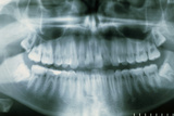 Panoramic Dental X-ray of Impacted Wisdom Teeth Photo by Kaj Svensson