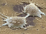 Dividing Cancer Cell, SEM Posters by Steve Gschmeissner
