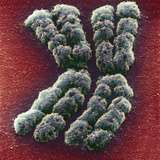Doubled Chromosome, SEM Photographic Print by Adrian Sumner