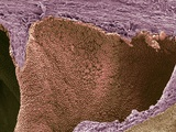 Prostate Cancer, SEM Photographic Print by Steve Gschmeissner