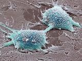 Dividing Cancer Cell, SEM Prints by Steve Gschmeissner