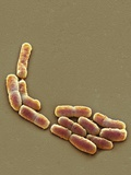 E. Coli Bacteria, SEM Photographic Print by Steve Gschmeissner
