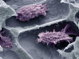 Osteoclasts In Bone Lacunae, SEM Photographic Print by Steve Gschmeissner