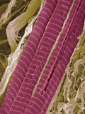 Primate Finger Muscle, SEM Photographic Print by Steve Gschmeissner