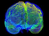 Human Brain Variation Photographic Print by Arthur Toga