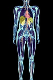 Full Body Scan, MRI Scan Posters by Volker Steger