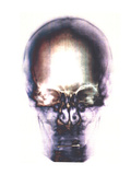 Human Skull, X-ray Photographic Print by Neal Grundy