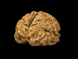 Alzheimer's Disease Brain, 3-D MRI Photographic Print by Arthur Toga