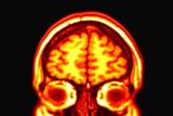 Brain, MRI Scan Photographic Print by Arthur Toga