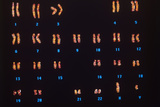 Normal Male Chromosomes Photographic Print