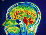 MRI Scan of Brain Photographic Print