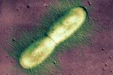 E. Coli Bacterium, TEM Photographic Print