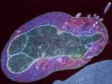 Malaria Parasite, TEM Photo