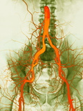Abdominal Arteries, X-ray Photographic Print