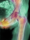 Coloured X-ray of Hip Fracture Due To Osteoporosis Photographic Print