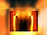 Double Hip Replacement, X-ray Photographic Print by Miriam Maslo