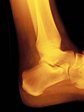 Normal Ankle Joint, X-ray Photographic Print by Miriam Maslo