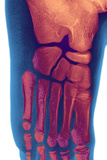 Child's Foot, X-ray Photographic Print by Du Cane Medical
