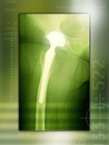 Hip Replacement, X-ray Photographic Print by Miriam Maslo