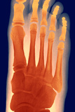 Child's Foot, X-ray Posters by Du Cane Medical