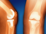 Prosthetic Knee Joint, Coloured X-ray Premium Photographic Print by Miriam Maslo