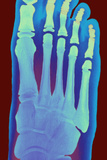 Child's Foot, X-ray Prints by Du Cane Medical